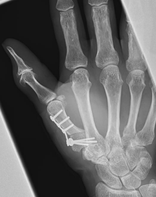 中手骨外転骨切り術